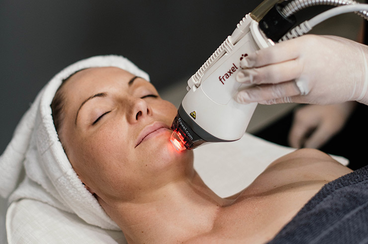cosmoderm-laser-treatments